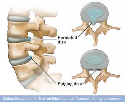 disc hernation vs bulge
